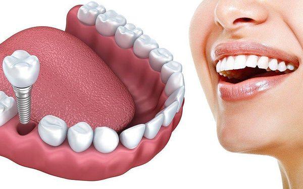 Aplikace zubního implantátu vč. dentální hygieny
