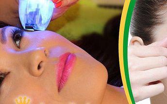 Vyhlazení očního okolí a pozvednutí očních víček - laser TrioLift - varianta pro 1 nebo 2 osoby.