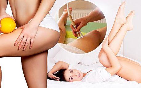Přístrojová baňková masáž, lymfodrenáž + poradenství! Odstranění celulitidy, otoků nohou a odbourání tuku!