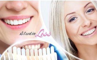 Bezperoxidové bělení zubů speciálním gelem Star White z USA! Šetrná a bezpečná metoda pro krásný úsměv!