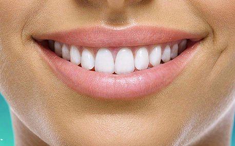 Ordinační bělení zubů