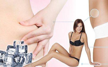 Udělejte něco pro své zdraví.Lymfatická drenáž 30 minut + Kryolipolýza 1x30 minut.Podpořtelymfatický, žilní systém, zatočte scelulitidouapocitem těžkých nohou!