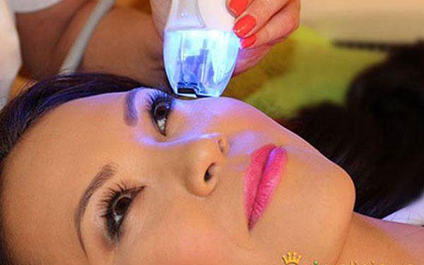 Vyhlazení očních vrásek pomocí TrioLiftu v Praze