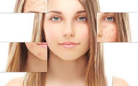 Fotochemické ošetření dermatologickým a estetickým laserem Biostimul. Zahrnuje celkem 5x ošetření.