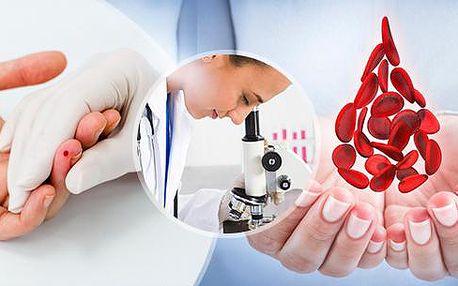 Vyšetření kapky krve: unikátní diagnostická metoda - odhalí problémy, než se projeví symptomy!
