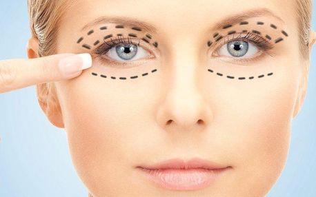 Plastická operace očních víček u Dr. Rau