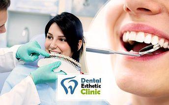 Zubní implantát špičkové kvality vč. nasazení protetikem, rentgenu a potřebné kontroly, v blízkosti metra Florenc!