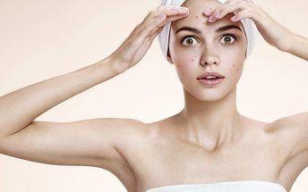 Profesionální léčba akné pro muže i ženy