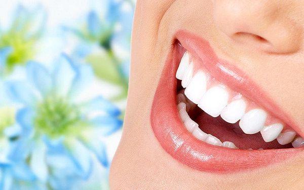Ordinační bělení zubů moderním gelovým systémem