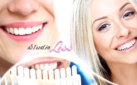 30min. bezperoxidové bělení zubů speciálním gelem Star White z USA! Šetrná a bezpečná metoda pro krásný úsměv!