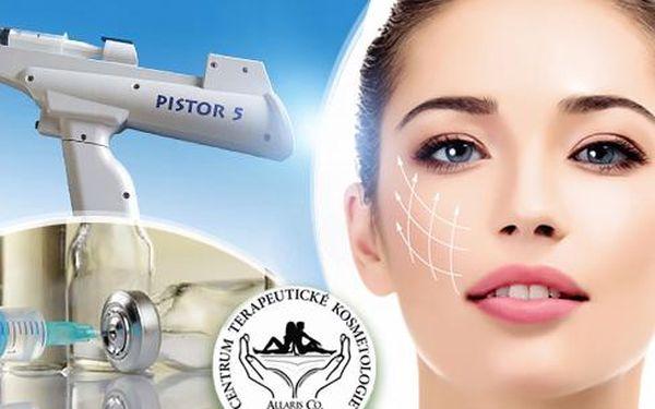 Express lifting pokožky metodou mezoterapie za pomocí kys. hyaluronové! Odstranění vrásek a váčků pod očima!