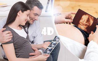 4D ultrazvuk v reálném čase pro nastávající maminky! Pořiďte si záznam a fotografii vašeho miminka!