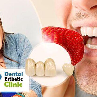 Zubní faseta z kompozitu - korekce estetické nedokonalosti zubu pro bezchybný úsměv, v blízkosti metra Florenc!
