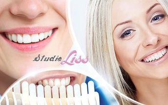 30min. bezperoxidové bělení zubů speciálním gelem Star White z USA. Šetrná a bezpečná metoda pro krásný úsměv.