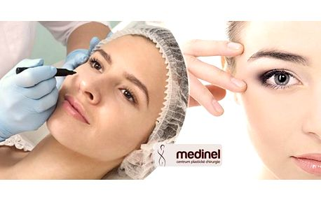 Plastická operace horních/dolních očních víček na obou očích - záloha, doplatíte jen 5000 Kč