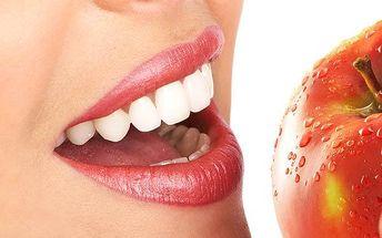 Bělení zubů bez použití peroxidu v Praze