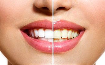 60minutové neperoxidové bělení zubů plazmovou lampou v salonu Xidonie v Praze