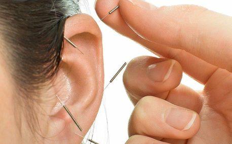 Akupunktura na hubnutí nebo proti kouření