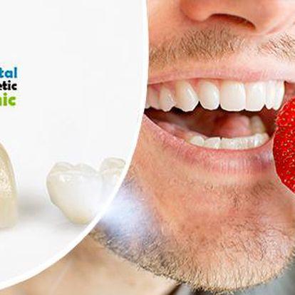 Zubní implantát špičkové kvality v ordinaci nedaleko metra Florenc!