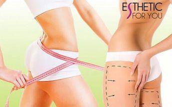 Až 90% sleva na nasávací kryolipolýzu s nemrznoucí membránou v salonu Esthetic For You