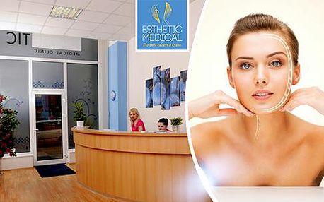 Neinvazivní facelifting obličeje pomocí ultrazvukové radiofrekvence Exilis Face v Praze.