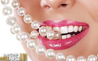Až 90% sleva na bělení zubů bez peroxidu