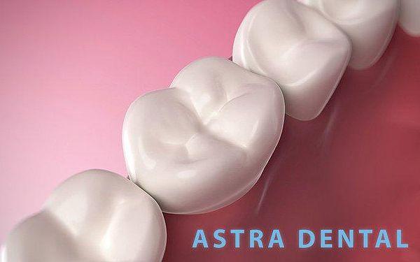 Bílá plomba nebo výměna amalgámové plomby za bílou v ordinaci Astra Dental v Praze