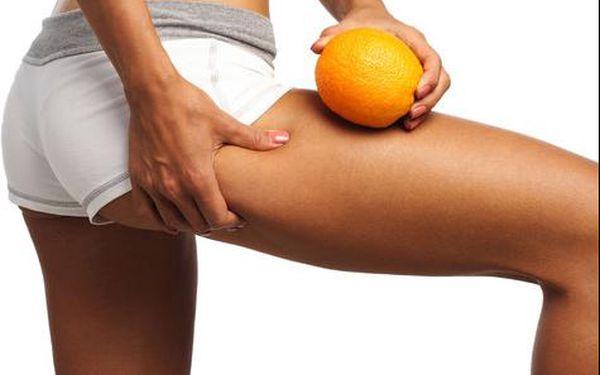 94% sleva na 60 minut kryolipolýzy + 20 min. lymfodrenáže