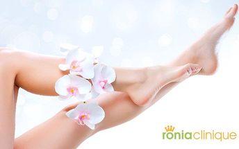 Permanentní epilace podpaží, oblasti bikin nebo lýtek v Ronia Clinique v Praze