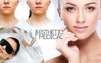 Účinně na akné, vrásky nebo pigmentaci IPL světlem a biostimulací: 1, 4 nebo 6 ošetření