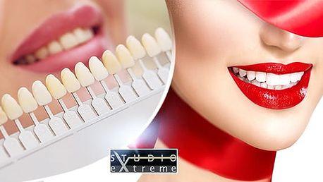 30min. bezperoxidové ordinační bělení zubů laserem pro zářivý úsměv bez bolesti