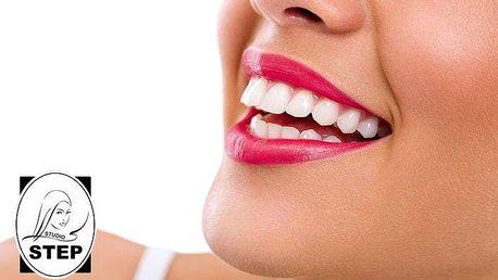40minutové profesionální bělení zubů šetrnou metodou v pražském studiu Step