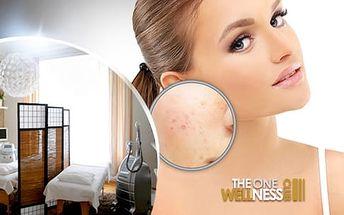 3 bezbolestná ošetření pro odstranění akné, žilek, pigmentových skvrn a dalších nedostatků