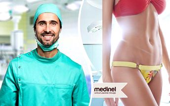 Chirurgická liposukce na klinice Medinel: břicho, stehna, boky, hýždě či paže za 18 750 Kč