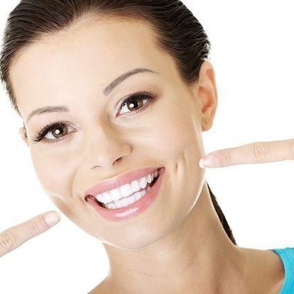 Zubní faseta z kompozitu - korekce estetické nedokonalosti zubu v blízkosti metra Florenc