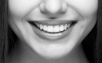 Neperoxidové bělení zubů vč. remineralizace