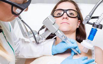 Odstranění znamének, pih či bradavic laserem