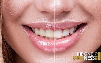 40min. bezbolestné neperoxidové bělení zubů s možností remineralizace zubní skloviny v Praze