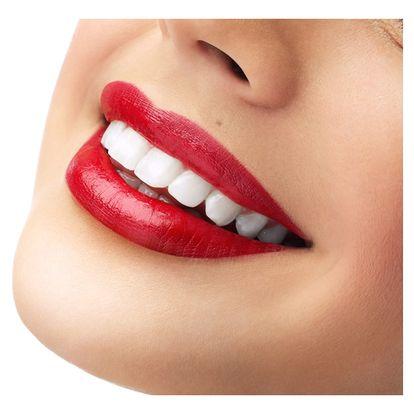 Ordinační bělení zubů laserem bez použití peroxidu