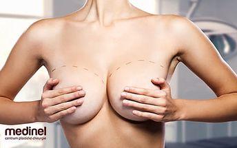 Plastická operace prsou včetně péče a konzultace na klinice Medinel: Kulaté či anatomické implantáty