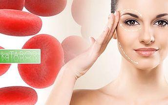 90min. plazmaterapie vč. biostimulační laser pro omládnutí pomocí vlastní krve až o 10 let