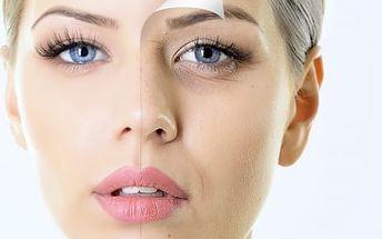 Hifu - 4pólový ultrazvuk: neinvazivní lifting očního okolí, obličeje nebo krku a dekoltu