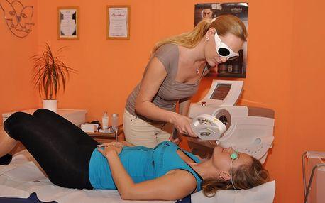 Kosmetické ošetření: pigmentové skvrny a žilky na do 3 cm² na odstranění přístrojem IPL