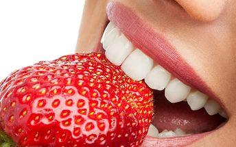 Neperoxidové bělení zubů včetně remineralizace zubní skloviny v Brně.