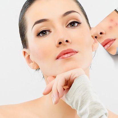 Kosmetické ošetření pro aknózní pleť