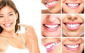 Bělení zubů bez peroxidu v Ostravě - reprezentující a nádherně krásně bílé zuby.Bezbolestná metoda bez dlouhotrvající citlivosti zubů a bez peroxidu. Bělící efekt vydrží minimálně 5 měsíců.Technologie nepoškozuje sklovinu, korunky ani fasety.