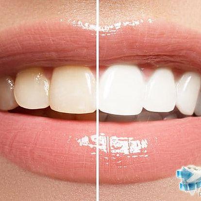 Peroxidové bělení zubů Beyond v zubní ordinaci Dental Beauty v Praze