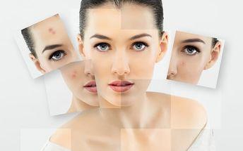 Trvalé a účinné odstranění nedostatků - akné a jizvy po něm: obličej, dekolt, krk, ramena, záda