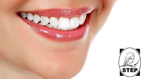 40 minut neperoxidového vybělení zubů až o 6 odstínů v Praze