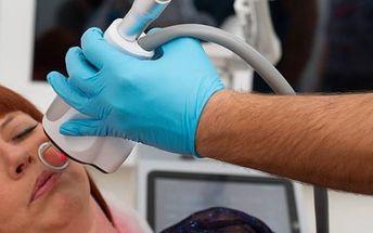 Bezbolestné laserové odstranění 1-5 znamének nebo bradavic včetně konzultace a anestezie
